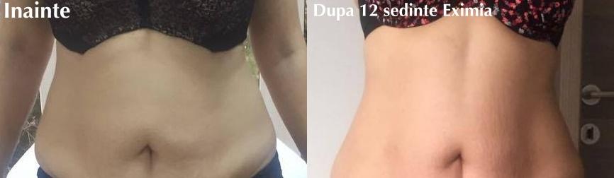 Remodelare corporală: 14 cm în minus după 12 ședințe cu Eximia