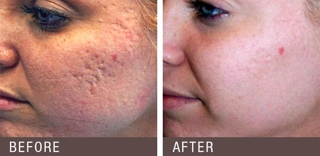 Laserul care poate rezolva aproape orice problemă a pielii a ajuns în România!
