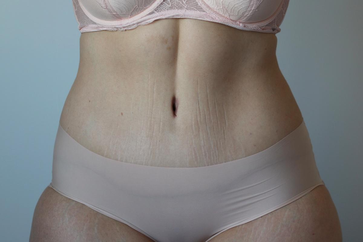 Mi-am făcut operație de abdominoplastie. Cum a fost recuperarea.